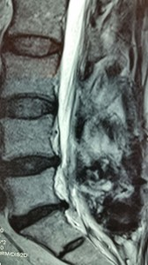 radicolopatia-multipla-cronica-FBSS-1