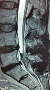 radicolopatia-multipla-cronica-FBSS